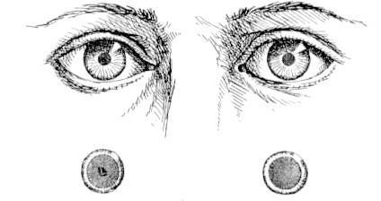 спазм акомодації очей