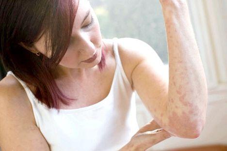 Алергічний висип: причини та способи її лікування
