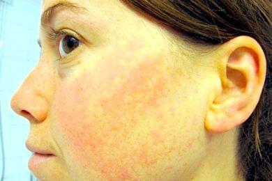 алергічний набряк обличчя
