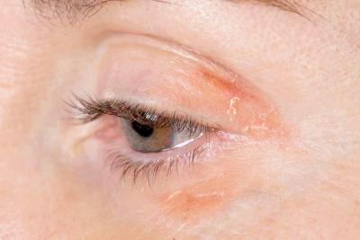 алергія на обличчі лікування