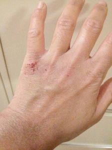 Авітаміноз.Сімптоми на руках