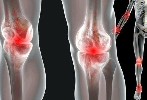 Біль у суглобах: як її позбутися?
