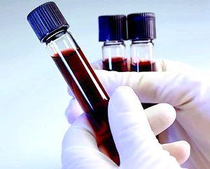 аналіз крові на хвороби