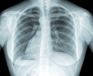 профілактика туберкульозу народними засобами