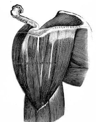 дельтоподібний м'яз