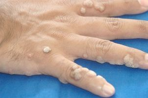 Папіломавірус 16 лікування