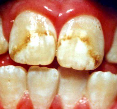 фторування зубів відгуки