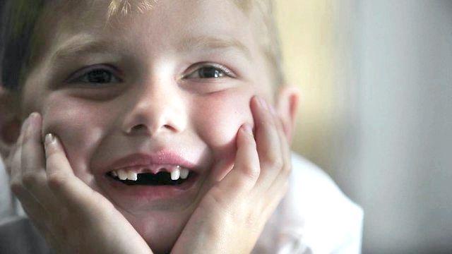 фторування зубів у дітей