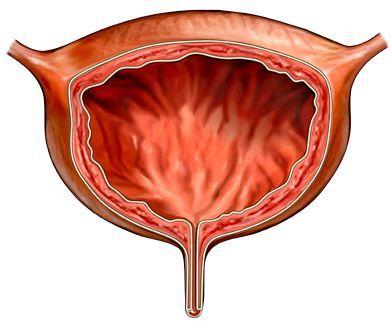 гіперактивний сечовий міхур лікування
