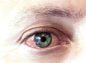 червоні очі і сверблять