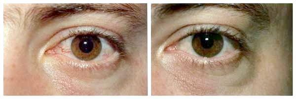 червоні очі лікування
