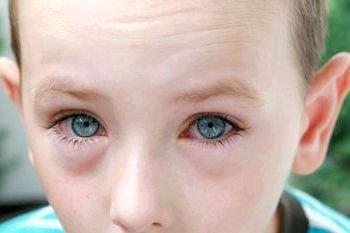червоні очі фото