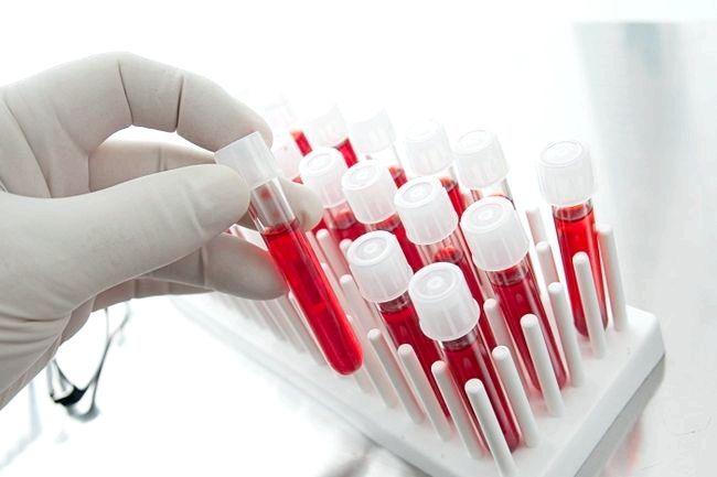 аналіз крові еозинофіли