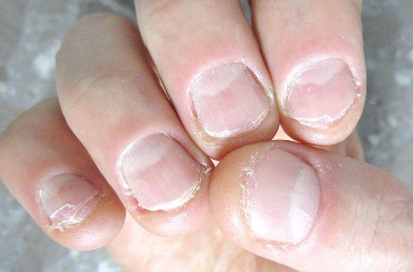 гризти нігті наслідки