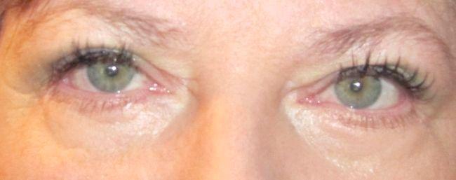 як зняти пухлина з очей