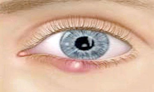 як зняти пухлина з ока від ячменю
