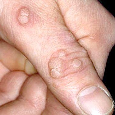 бородавка на пальці