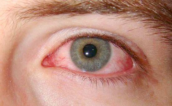 краплі для очей протизапальні