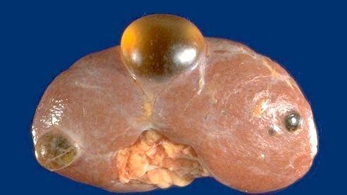 Кіста нирки лікування
