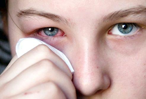 Коньюктивит: лікування, види і симптоми захворювання