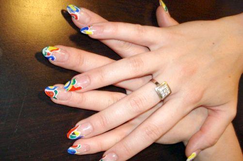 корекція врослого нігтя пластинами