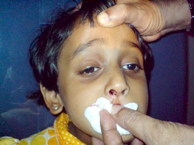Кров з носа у дитини: профілактика