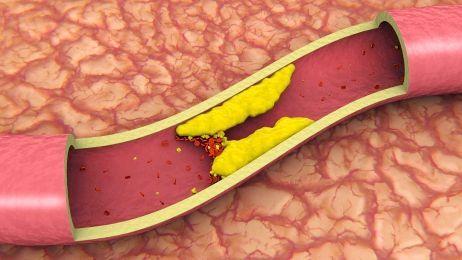 порушення кровопостачання мозку