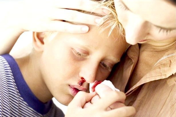 кровотеча з носа у підлітка