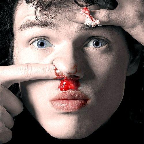 кровотеча з носа у дитини