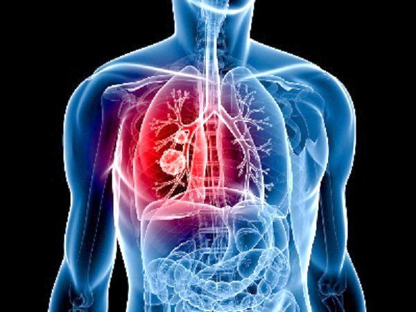 алгоритм при легеневій кровотечі