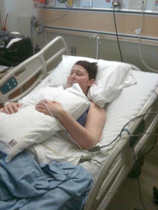 легенева кровотеча невідкладна допомога