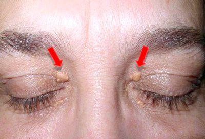видалення доброякісних новоутворень шкіри