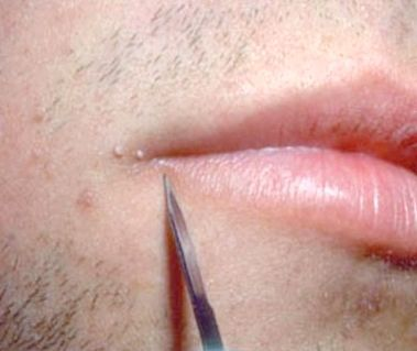 новоутворення на шкірі обличчя