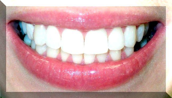 Нумерація зубів: порядкова і сегментна