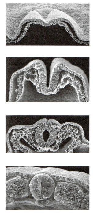 Розвиток в онтогенезі.