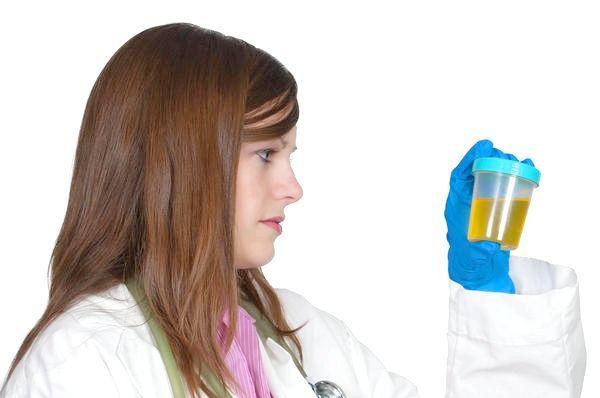 мікроскопія осаду сечі