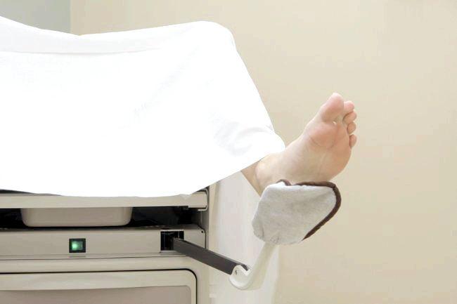 гострі кондиломи у жінок лікування йодом