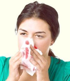 чому кров з носа