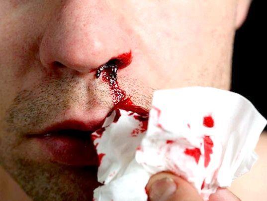 виділення з носа з кров'ю