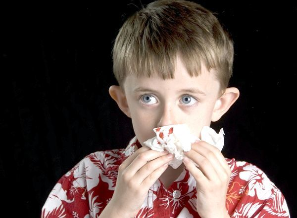 Причини носових кровотеч