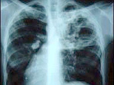 Ознаки туберкульозу
