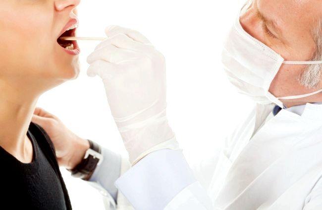 пробки на мигдалинах, лікування