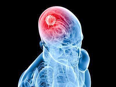 ознаки раку мозку