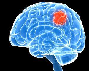 рак головного мозку симптоми ознаки