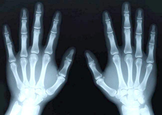 рентгенівські промені