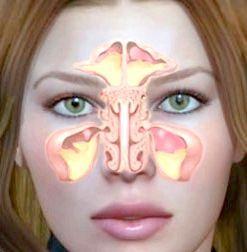 вазомоторний риніт симптоми