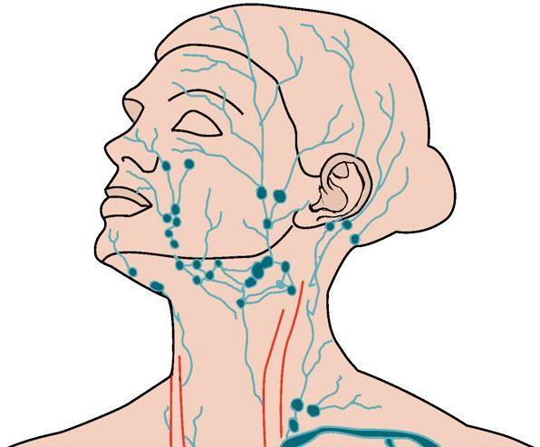 запалення лімфовузлів на шиї причини