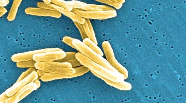 туберкульоз це захворювання