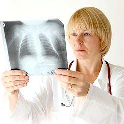 інфільтративний туберкульоз що це