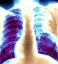 туберкульоз легенів симптоми